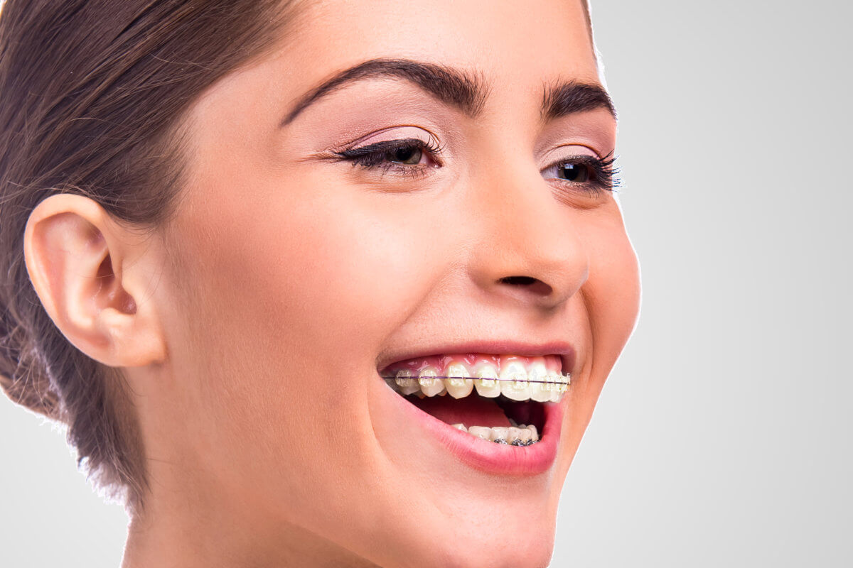 Southern California Family Dentistry - Whittier, Lake Forest, San Clemente - Braces