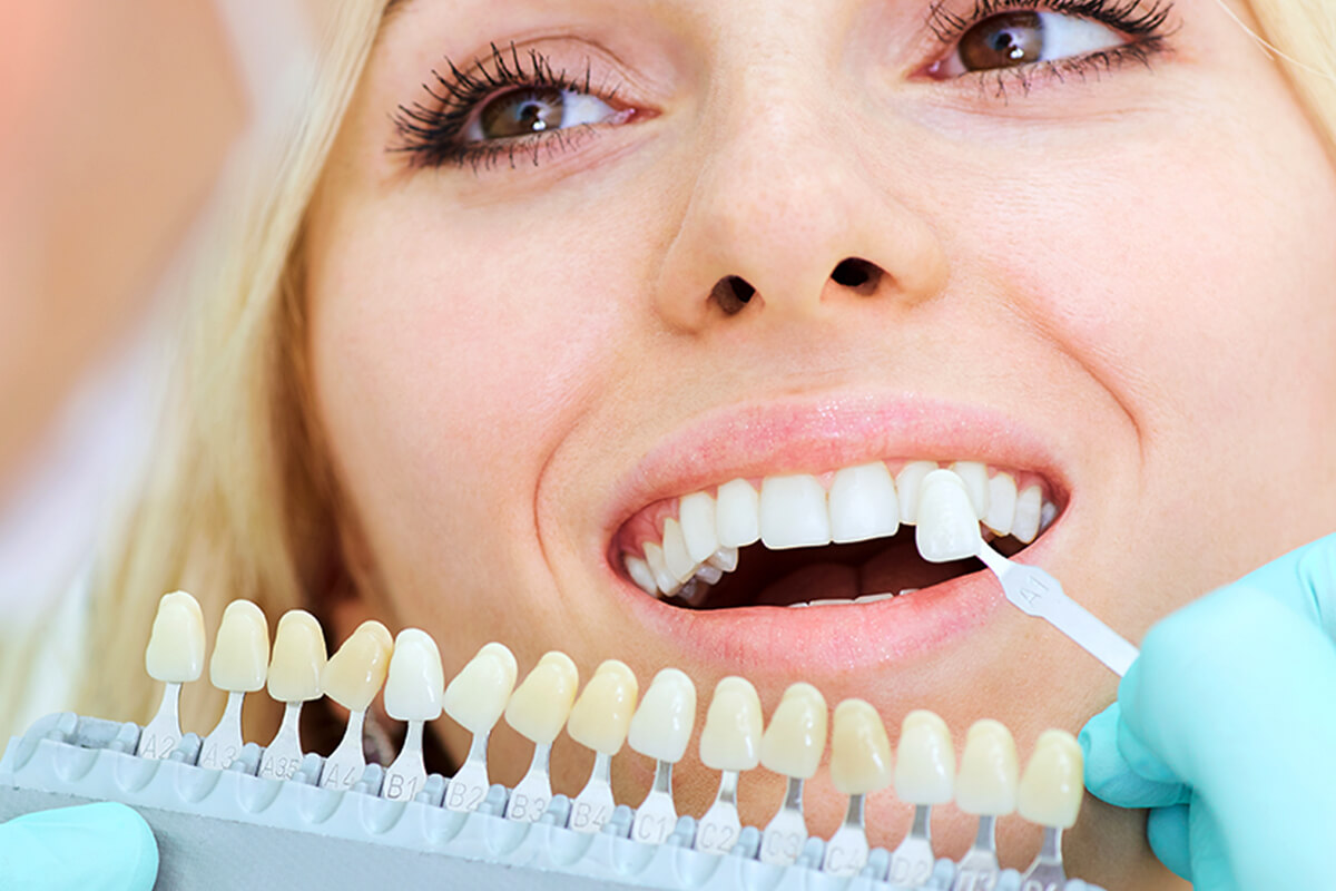 Southern California Family Dentistry - Crowns and Veneers