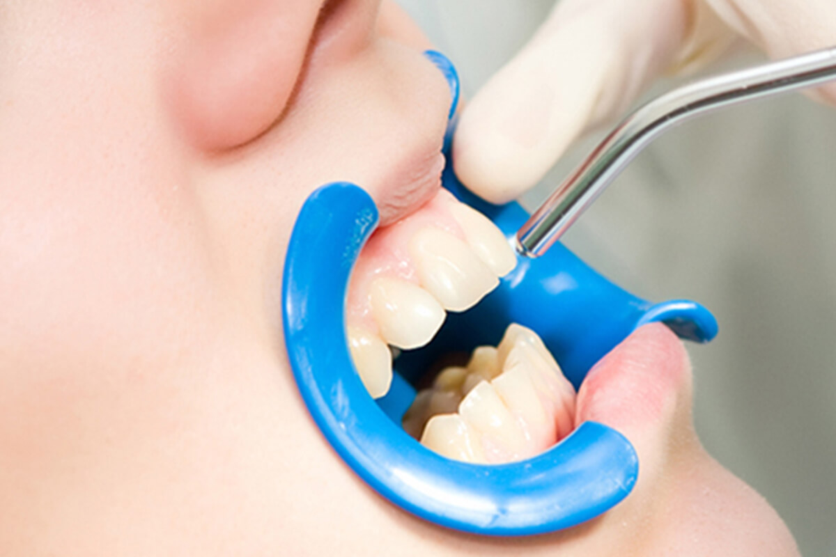 Southern California Family Dentistry - Dental Sealants