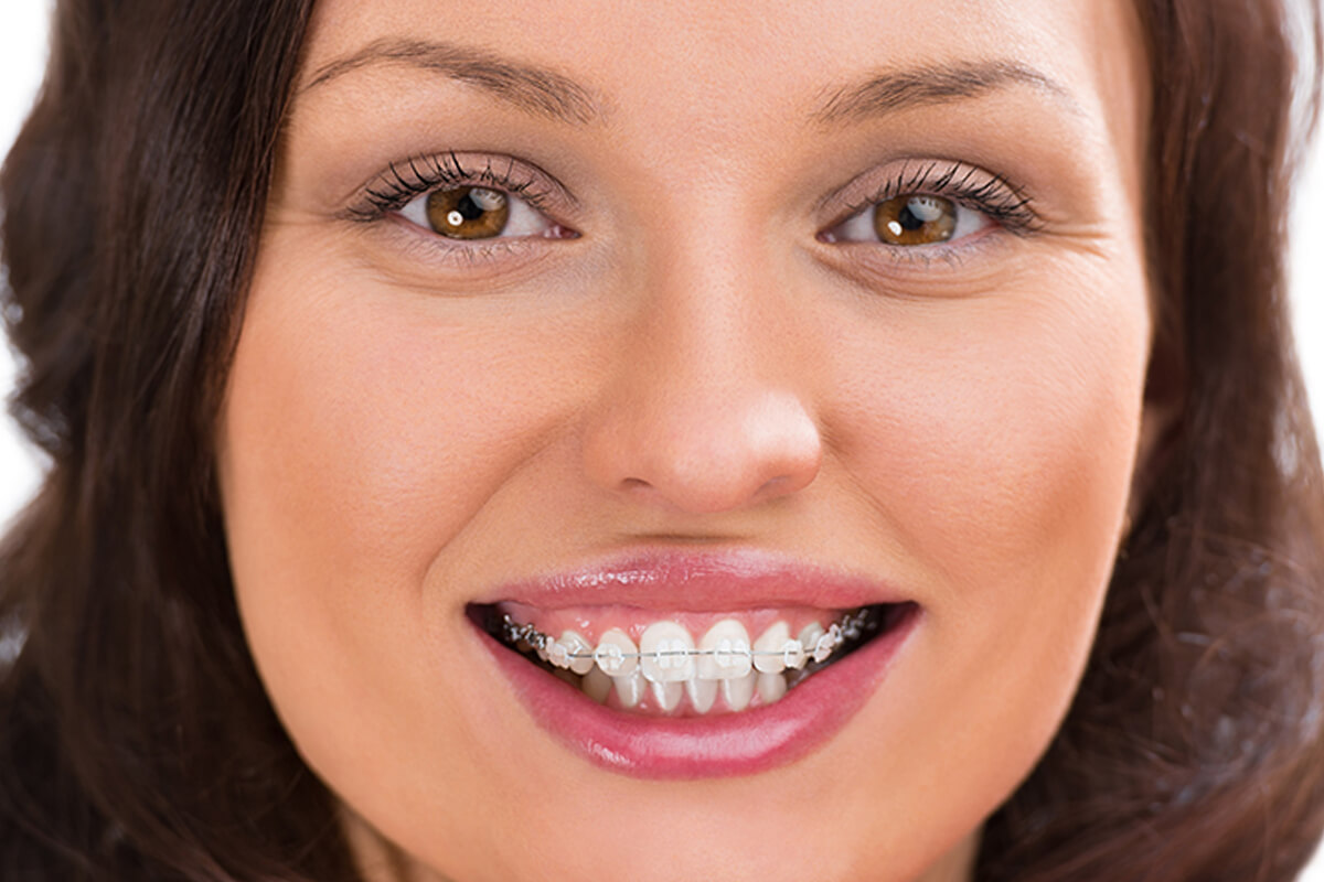 Southern California Family Dentistry - Braces
