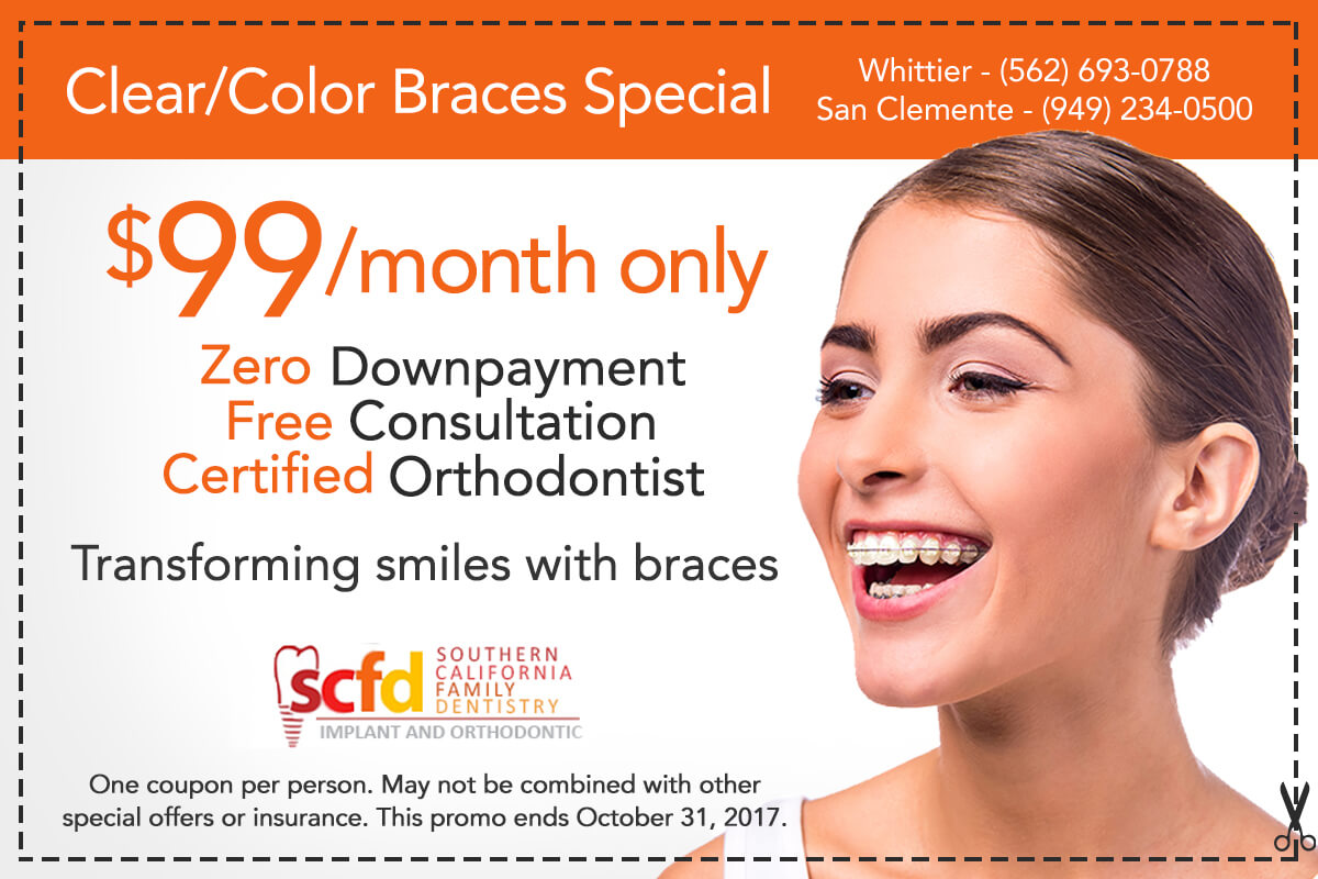 Southern California Family Dentistry - Braces Special