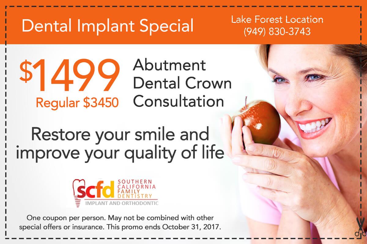 Dental Promo Lake Forest-Dental Implant