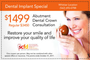 Dental Promo Whittier-Dental Implant