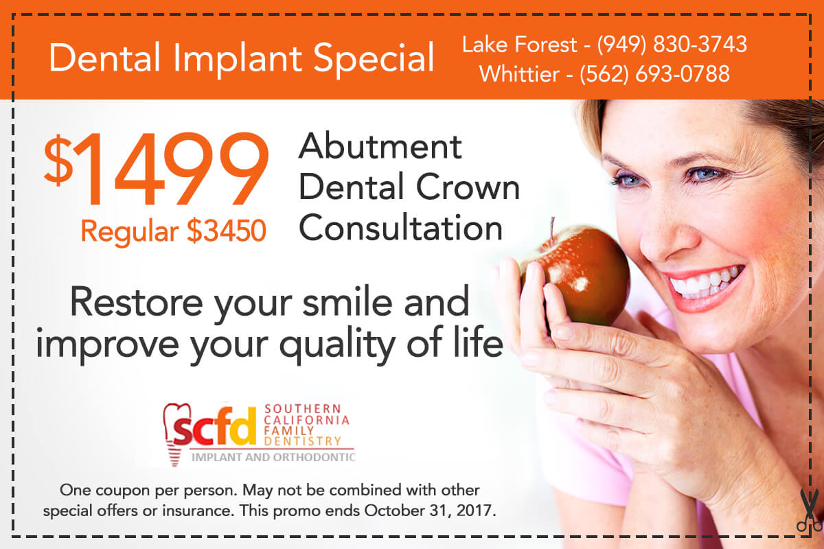 Southern California Family Dentistry - Dental Implant Special Offer