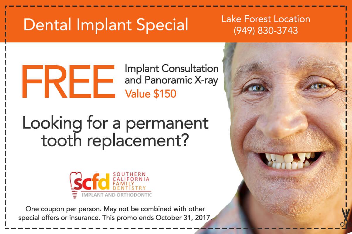 Dental Promo Lake Forest-Dental Implant Consultation