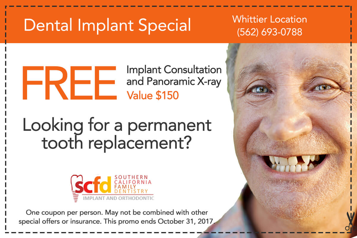 Dental Promo Whittier-Dental Implant Consultation